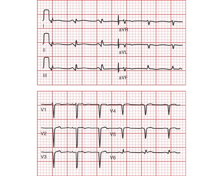 Переднебоковой инфаркт миокарда на ЭКГ