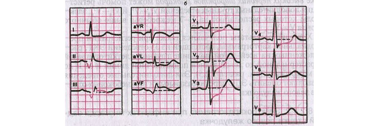 Заднедиафрагмальный инфаркт миокарда на ЭКГ