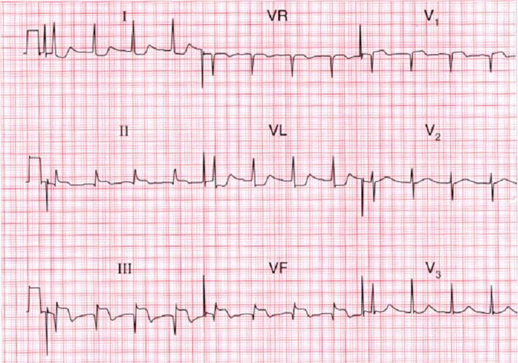 Инфаркт ПЖ на ЭКГ