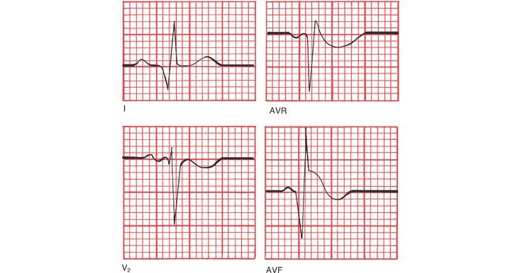 Появление патологического зубца Q при инфаркте миокарда
