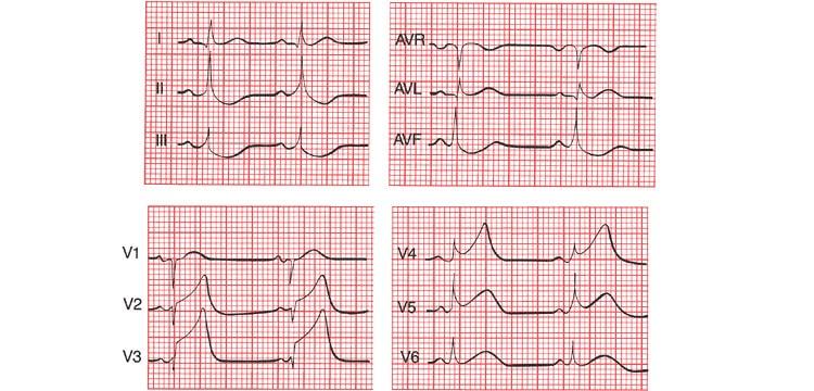 Смещение ST ниже изолинии в отведениях при инфаркте миокарда