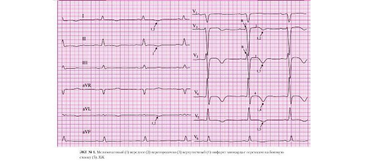 Отрицательный зубец T над областью инфаркта на ЭКГ