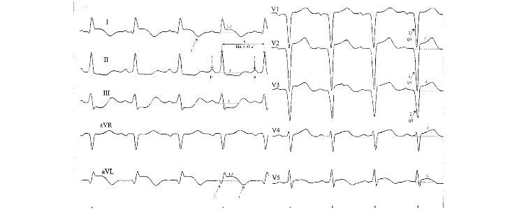 Инфаркт миокарда на ЭКГ: признаки, расшифровка