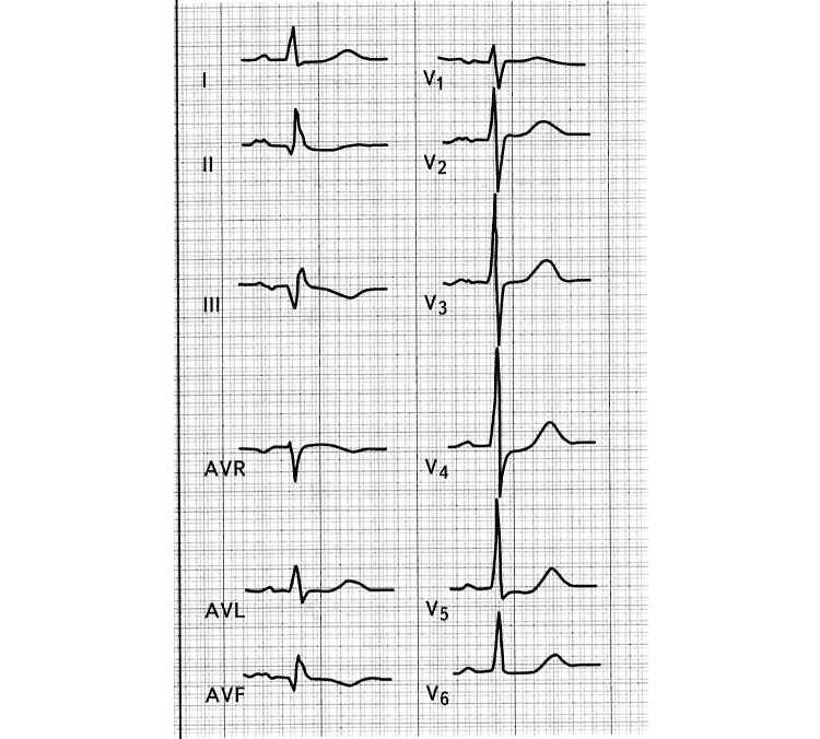 Подострый инфаркт миокарда на ЭКГ
