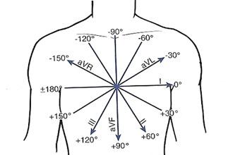 Что такое электрическая ось сердца