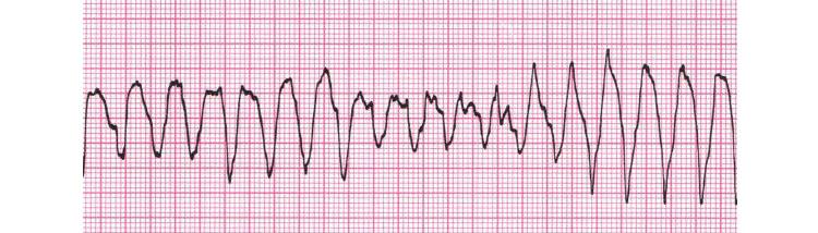 Трепетание желудочков на электрокардиограмме