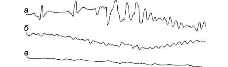 Стадии трепетания желудочков на ЭКГ
