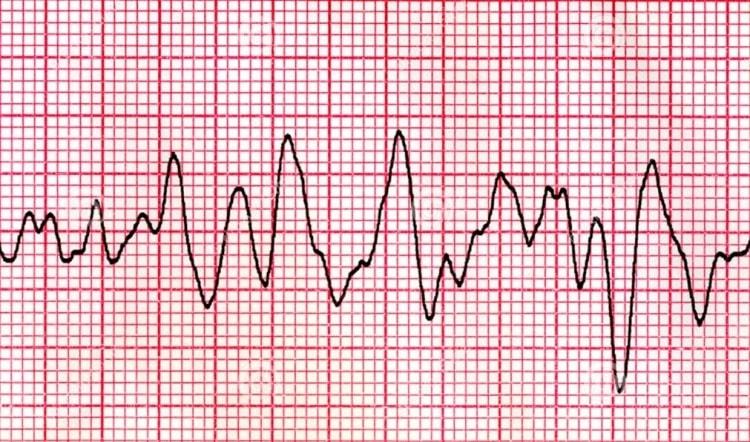Фибрилляция желудочков сердца на экг что это такое фото неотложная помощь и лечение