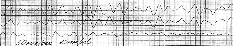 Судорожная стадия трепетания желудочков на электрокардиограмме