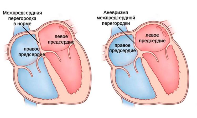 Физиология аневризмы