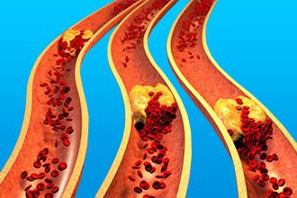 Что такое генерализованный атеросклероз