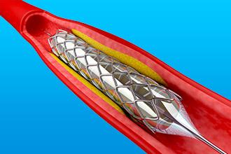 Стентирование венечных артерий