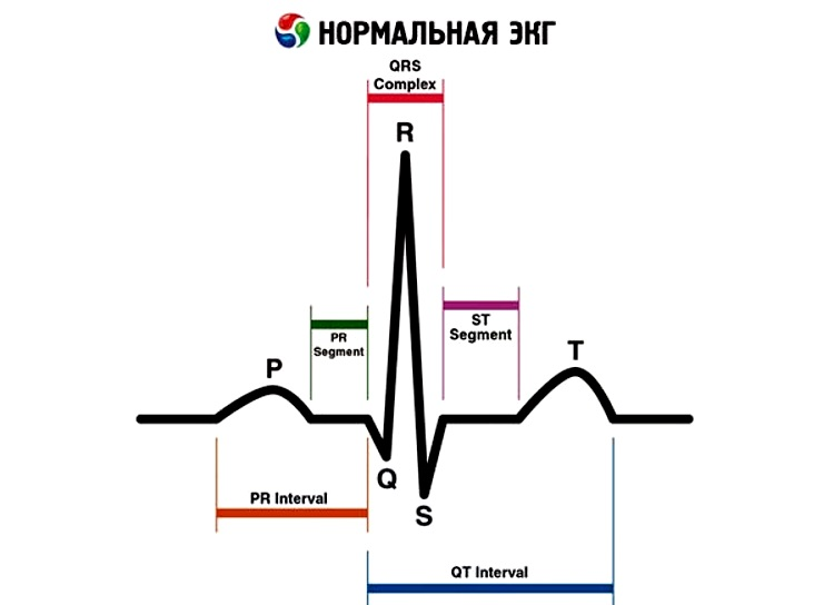 Нормы ЭКГ при ишемической болезни сердца