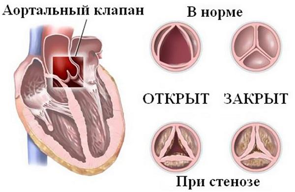Патология сердечных клапанов