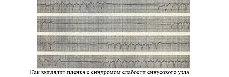 Пленка с синдромом слабости синусового узла