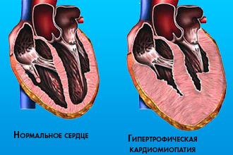 Гипертрофическая кардиомиопатия (ГКМП)