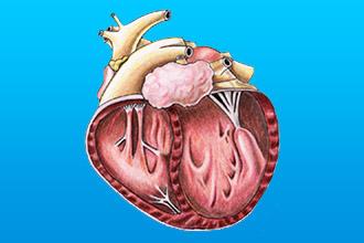 Симптомы кардиопатии