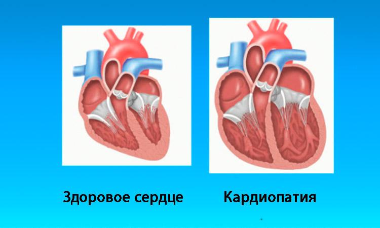 Функциональная кардиопатия у детей новорожденного ребенка что это такое
