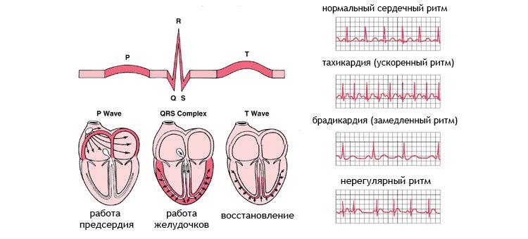 Причины отклонения ритмов сердца
