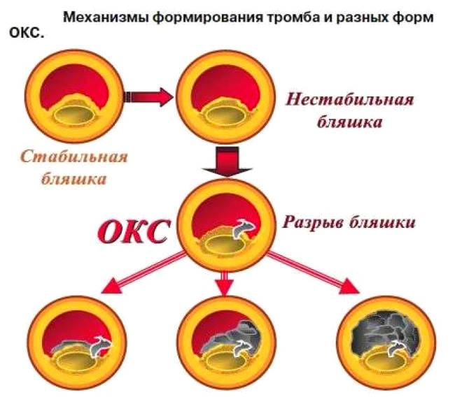 механизм формирования бляшки при остром коронарном синдроме