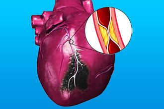 Крупноочаговый инфаркт миокарда