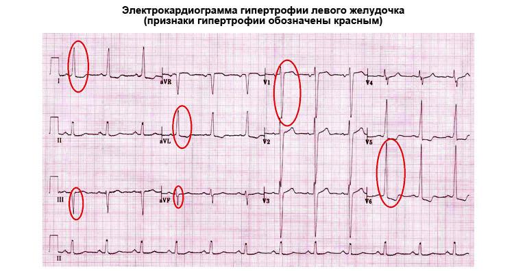 Электрокардиограмма гипертрофии левого желудочка сердца