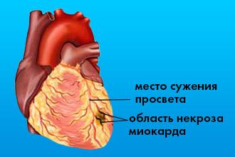 Что такое мелкоочаговый инфаркт миокарда