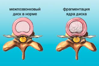 Межпозвонковый диск при остеохондрозе