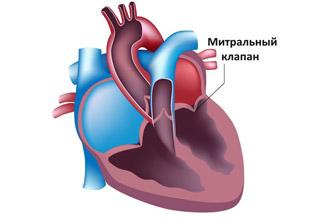 Где расположен митральный клапан сердца