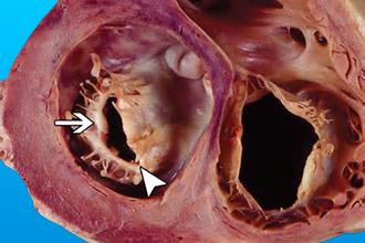 Хирургическое вмешательство при стенозе митрального клапана