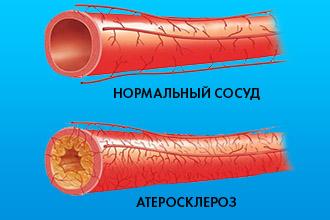 Атеросклероз сосуд