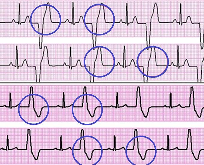 Электрокардиографическая диагностика экстрасистолии