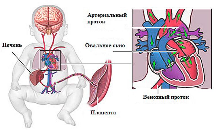 не открылся клапан сердца у новорожденного