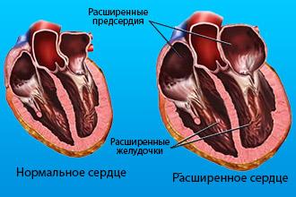 Патологический процесс сердца