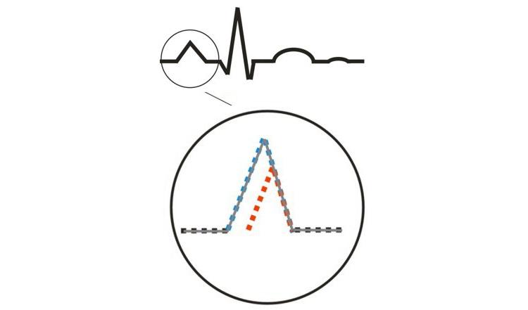 Изменения при электрокардиографии, характерные для гипертрофированного ПП