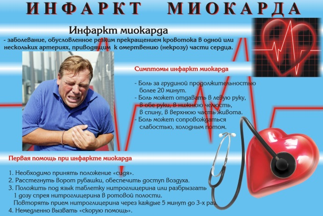 Нормы пульса при инфаркте
