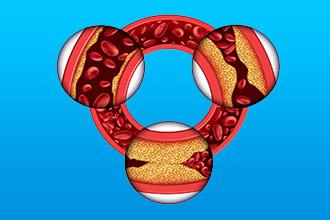 Основные кардиоваскулярные патологии и их причины