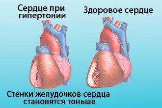 Сравнение здорового сердца и сердца при гипертонии