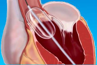 Баллонная вальвулопластика сердца