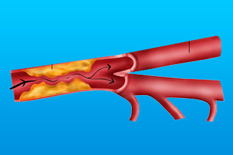 Непроходимость сонной артерии
