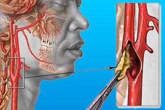 Сужение сонной артерии
