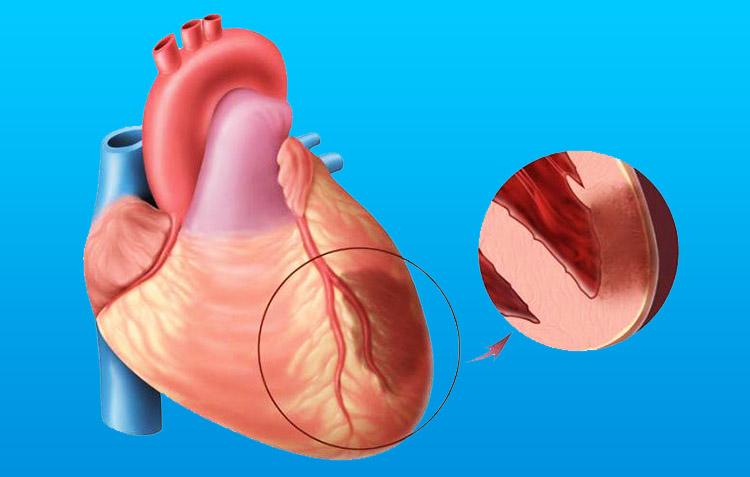 Что такое трансмуральный инфаркт