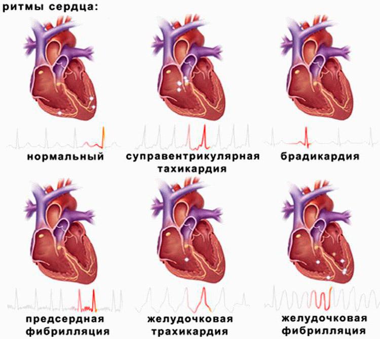 Виды сердечных ритмов