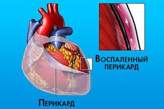 Причины и лечение жидкости в сердце. Жидкость в сердце: причины и лечение