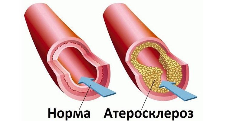 Вид здорового и поражённого атеросклерозом сосуда