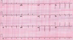 af2 - Atrial flutter forms, causes, symptoms, diagnosis and treatment