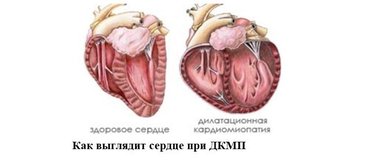 Как выглядит сердце при ДКМП