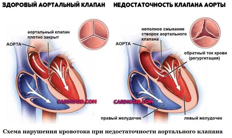 Klapan aorty - Nedostatak aortne zaklopke - liječenje, stepen