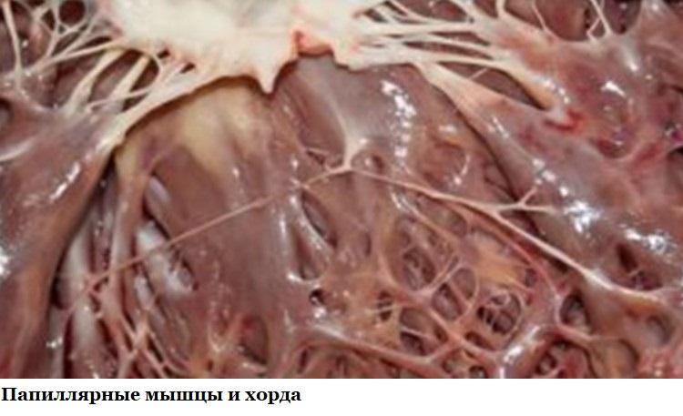 Папиллярные мышцы и хорда