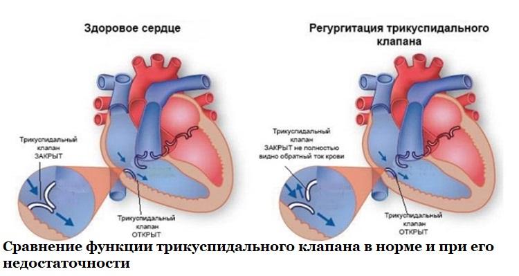Сравнение функции трикуспидального клапана в норме и при его недостаточности